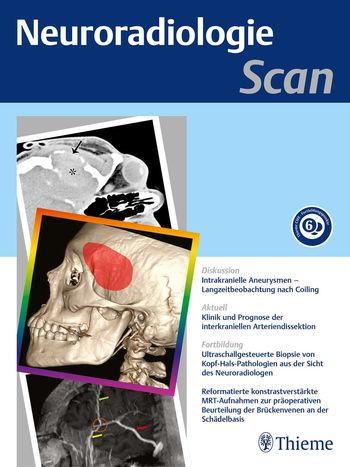 Neuroradiologie Scan Cover